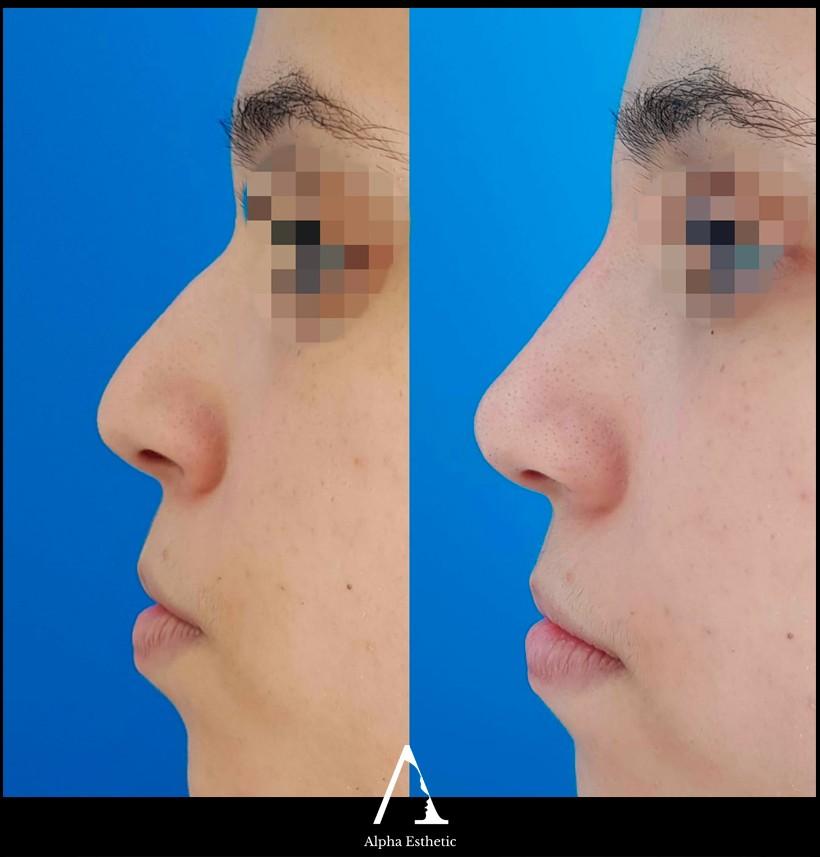 Chirurgie esthétique du nez rhinoplastie