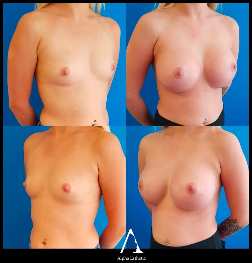 chirurgie esthétique du sein augmentation mammaire