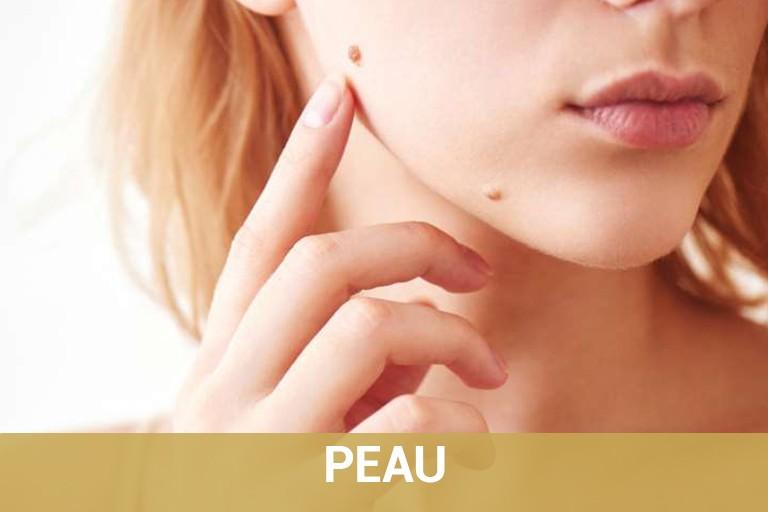 Chirurgie Esthétique de la peau