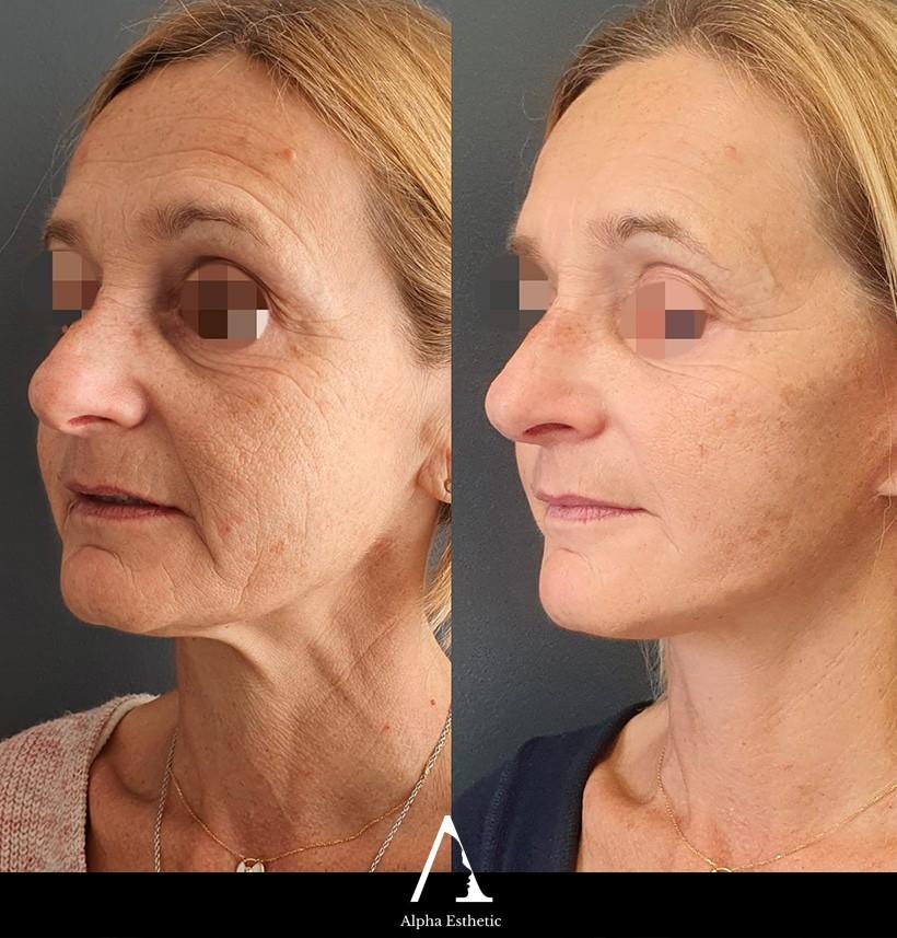 blepharoplastie chirurgie esthétique des paupières