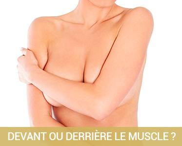 Chirurgie Esthétique du sein les implants