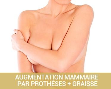 Augmentation mammaire composite : prothèses + graisse en chirurgie du sein