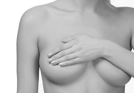 Chirurgie du sein augmentation mammaire composite prothèses + lipoffiling